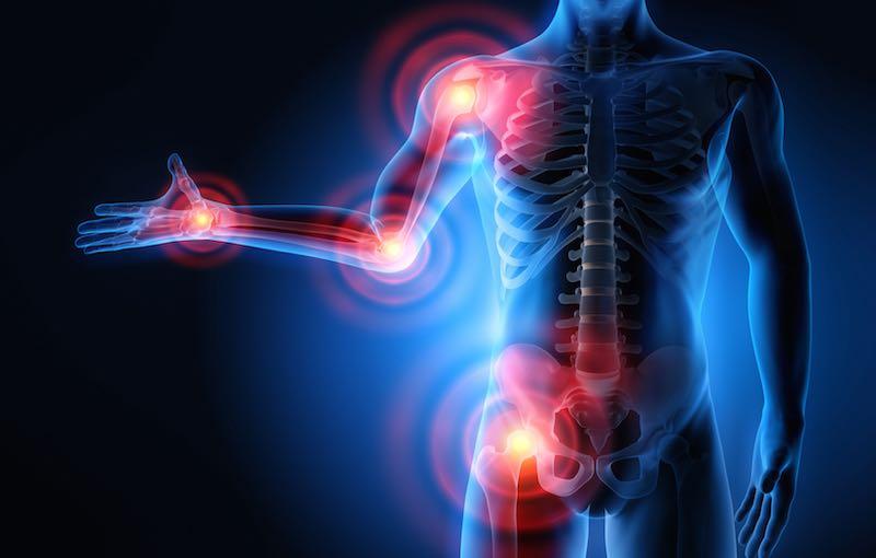 Jak zmniejszyć stan zapalny powodujący ból stawów?